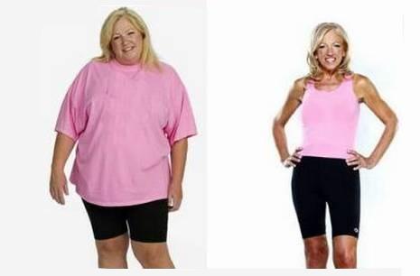 Ожирение, целлюлит